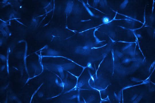 Im Biochip gezüchtete menschliche Gefäßsysteme.