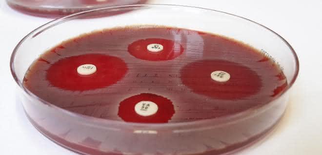 Der Plättchentest macht Antibiotika-Resistenzen sichtbar.