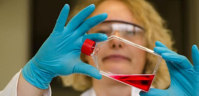 Menschliche Zellkulturen helfen dabei, entzündliche Darmerkrankungen besser zu verstehen.