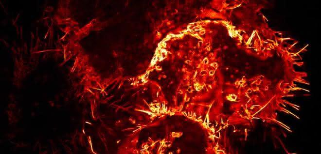 Mikroskopische Aufnahme: Menschliche Zellen, die Virosomen produzieren