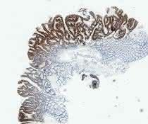 Mikroskopische Aufnahme von entarteten menschlichen Darmpolypen