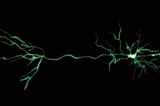 Computergestützte Neurowissenschaften: Methode für die Analyse von Nervenzellreaktionen