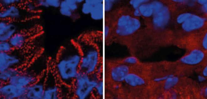 In gesunden Mäusen wird das Protein Desmoplakin von den Darmzellen in Desmosomen eingebaut. Ein fehlerhafter Insulinsignalweg führt zum Verbleib des Proteins im Zellplasma.