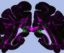 """""""Diattenuation Imaging"""" (DI) kann zur genauen Untersuchung von Hirngewebe  eingesetzt werden."""