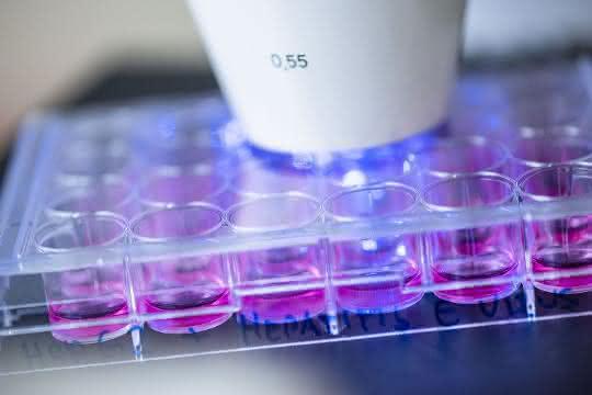 Humane Hepatoma-Zellen, die mit Hepatitis-E-Viren infiziert wurden, werden mittels Immunfluoreszenz analysiert.