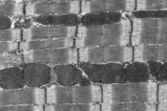 Mikroskopische Aufnahme des Herzmuskels.