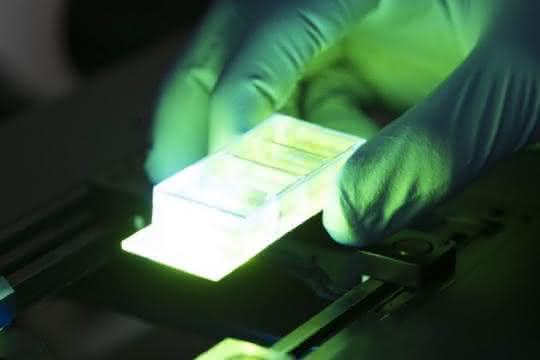 DNA-stabilisierte Metall-Quanten-Cluster sollen als hochempfindliche Biosensoren eingesetzt werden, um mit ihren Fluoreszenzeigenschaften Krankheiten zu detektieren.