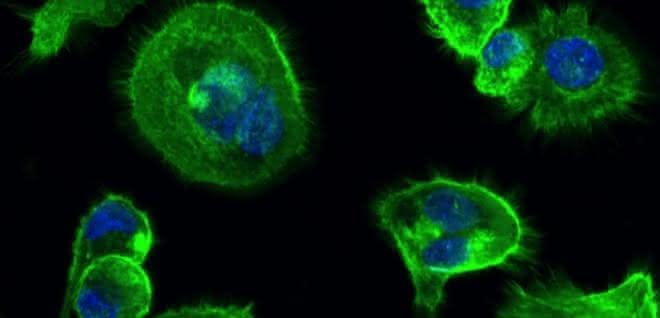 Diese Immunzellen exprimieren den betreffenden Rezeptor.