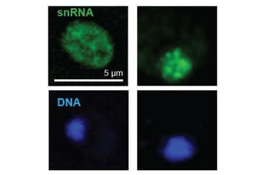 """Nachweis der zytoplasmatischen snRNA in normalen (Wild type) Zellen im Cytoplasma und das """"Festhalten"""" dieser snRNA in genetisch veränderten Zellen."""