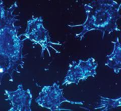 Mikroskopisches Fluoreszenzbild: Krebszellen