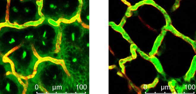 Mikroskopische Aufnahme von Blutgefäßen