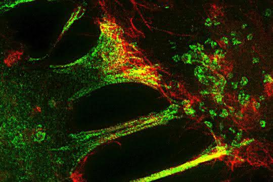 Fluoreszenzmikroskopische Aufnahme während der Trogozytose.