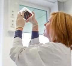 Im DKMS Life-Science-Lab prüft eine Mitarbeiterin ein vorbreitetes Blutprobenpanel auf den korrekten Füllstand.