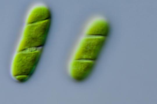 Mikroskopische Aufnahme von Algen