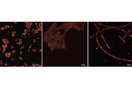 Drei mikroskopische Aufnahmen