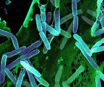 Mikroskopische Aufnahme von stäbchenförmigen Bakterien