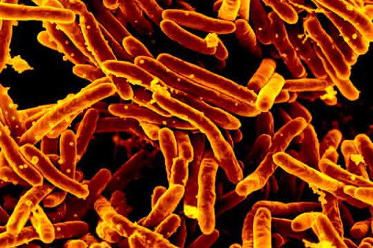 Elektronenmikroskopische Aufnahme des Tuberkuloseerregers