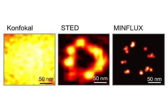 Der Vergleich dokumentiert die epochalen Auflösungs-Durchbrüche in der Fluoreszenzmikroskopie