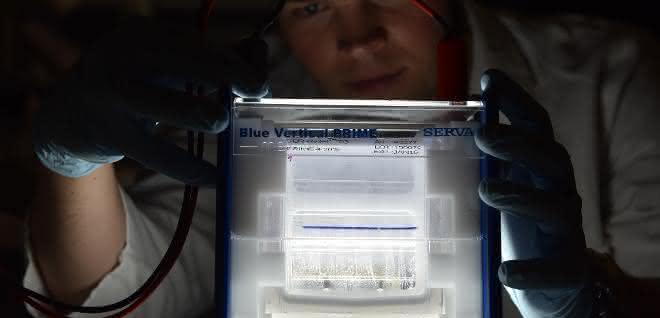 Gel zum Auftrennen der Histone