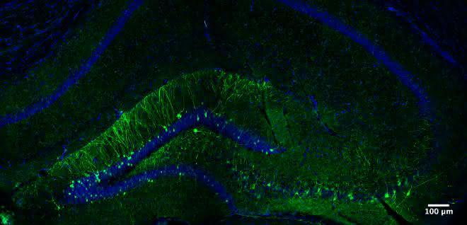 Hippocampus einer Maus
