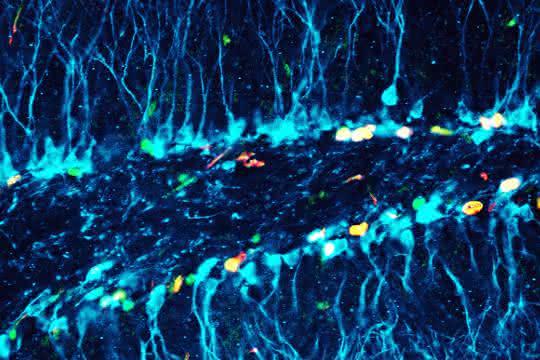 Neugeborene Nervenzellen unter dem Mikroskop.