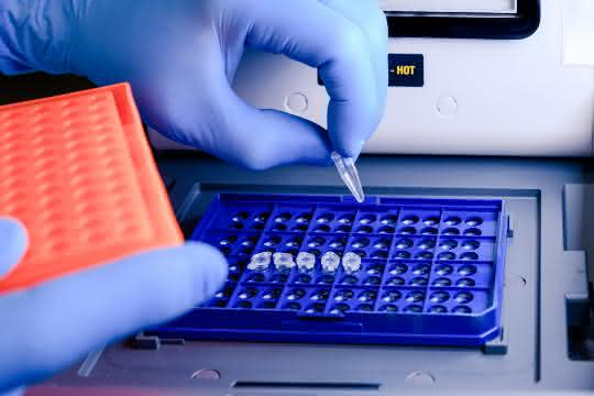 Behandschuhte Hand befüllt PCR-Thermocycler
