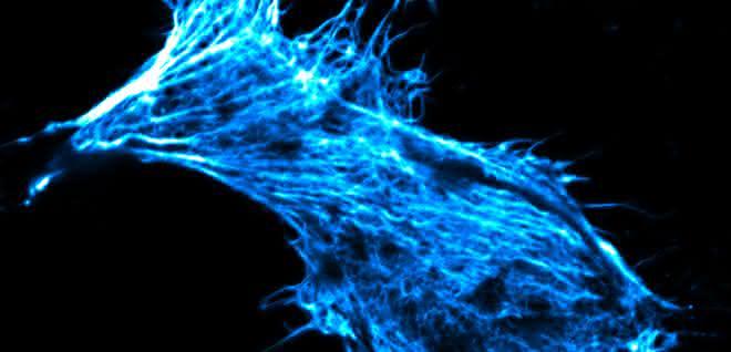 Krebszelle in Zellkultur, deren Skelett mit fluoreszierendem Phalloidin gefärbt ist.