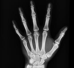 Röntgenaufnahme Hand